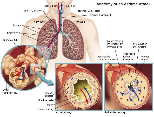 Ασθμα που γνωριμίες