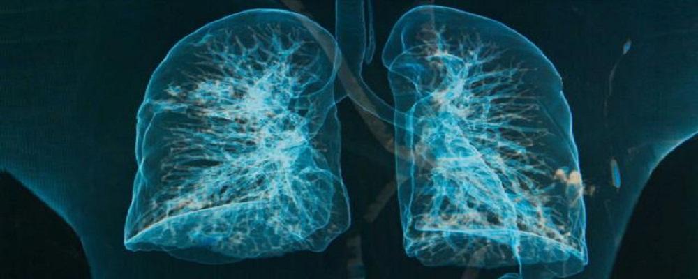 CONTIPS001_lungs-chronic-bronchitis-emphysema_FS1000x400