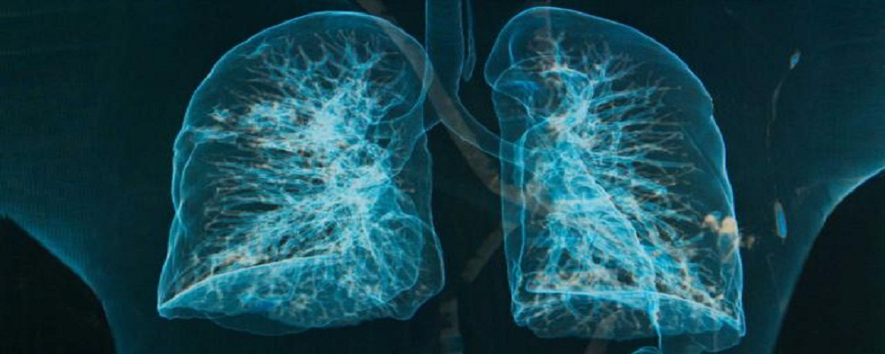 CONTIPS001_lungs-chronic-bronchitis-emphysema_FS1000x400